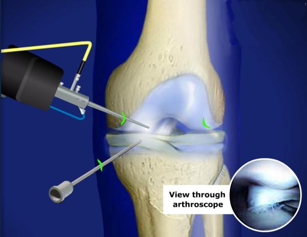 Диагностическая артроскопия коленного сустава